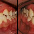Doctor-Carlos-Sejnaui-Casos-Clinicos-Ortodoncia-en-Cali 1