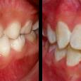 Doctor-Carlos-Sejnaui-Casos-Clinicos-Ortodoncia-en-Cali 10