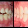 Doctor-Carlos-Sejnaui-Casos-Clinicos-Ortodoncia-en-Cali 12