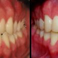 Doctor-Carlos-Sejnaui-Casos-Clinicos-Ortodoncia-en-Cali 13