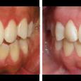 Doctor-Carlos-Sejnaui-Casos-Clinicos-Ortodoncia-en-Cali 14