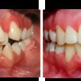 Doctor-Carlos-Sejnaui-Casos-Clinicos-Ortodoncia-en-Cali 16