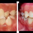 Doctor-Carlos-Sejnaui-Casos-Clinicos-Ortodoncia-en-Cali 17