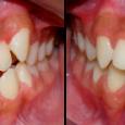 Doctor-Carlos-Sejnaui-Casos-Clinicos-Ortodoncia-en-Cali 19