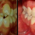 Doctor-Carlos-Sejnaui-Casos-Clinicos-Ortodoncia-en-Cali 2