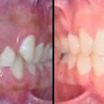 Doctor-Carlos-Sejnaui-Casos-Clinicos-Ortodoncia-en-Cali 21