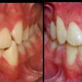 Doctor-Carlos-Sejnaui-Casos-Clinicos-Ortodoncia-en-Cali 22