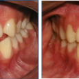 Doctor-Carlos-Sejnaui-Casos-Clinicos-Ortodoncia-en-Cali 24