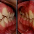 Doctor-Carlos-Sejnaui-Casos-Clinicos-Ortodoncia-en-Cali 25