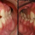 Doctor-Carlos-Sejnaui-Casos-Clinicos-Ortodoncia-en-Cali 4