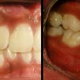 Doctor-Carlos-Sejnaui-Casos-Clinicos-Ortodoncia-en-Cali 7