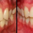 Doctor-Carlos-Sejnaui-Casos-Clinicos-Ortodoncia-en-Cali 9