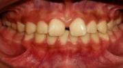 Espaciamento - Sejnaui Ortodoncia