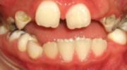 Mordida abierta - Sejnaui Ortodoncia