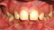 Mordida profunda - Sejnaui Ortodoncia