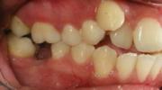Perdida Temprana de Dientes - Sejnaui Ortodoncia